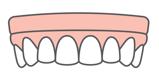 An illustration of an implant supported arch