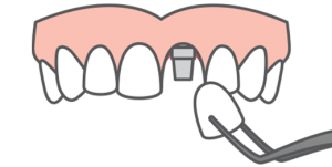 A single dental implant crown being placed