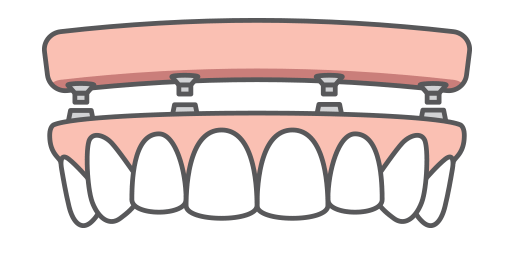 An upper arch of dental implants being placed